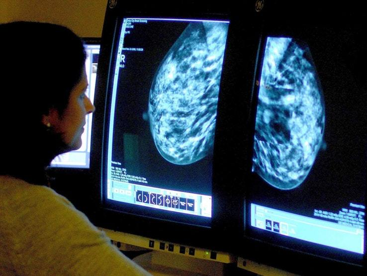 A doctor looks at a cancer scan